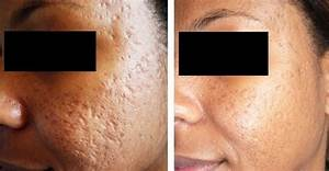 Dermaroller Microneedling Treatment All You Need To Know