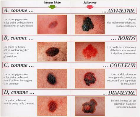 cancer peau photo les risques d avoir un cancer de la peau augmentent ils selon la position g 233 ographique junio 2015