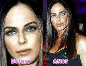 Cosmetic Surgery Before And After  Before After Plastic Surgery