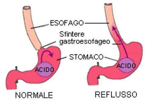 Malattia reflusso gastroesofageo