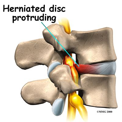 Lumbar Disc Herniation  Eorthopodcom. Best Identity Theft Protection Consumer Reports. Chevy Dealership Service Abc Roofing Portland. The General Life Insurance Yahoo Email Backup. Blue Ribbon Carpet Cleaning Help Desk Agent. Free Screen Sharing With Audio. Pharmacy Technician Certifications. Reputation Defender Reviews Paid Job Search. Citibank Credit Card Customer Care