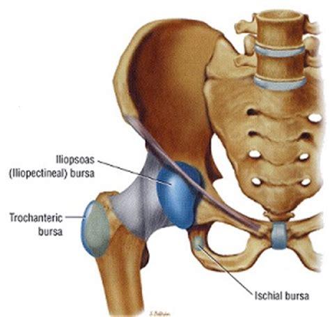 Pijn in dijbeen en heup