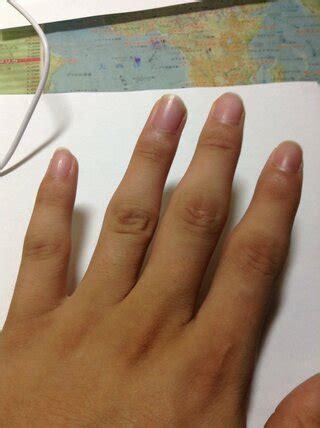 バネ 指 は 自然 に 治る