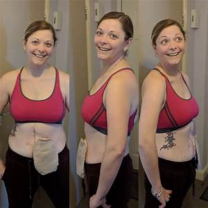 Can Weight Loss  U0026 Weight Gain Affect Our Stoma Site