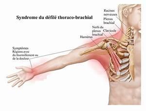 Inflammation cervico brachiale
