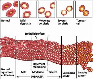 Diagram Of Dysplasia