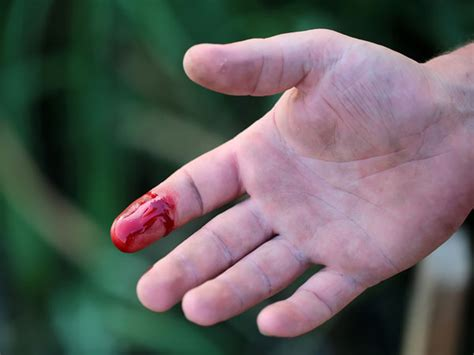 11 Quick Home Remedies For Bleeding Wounds - Boldsky.com