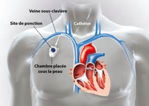 Pose Chambre Implantable chambre implantable h 244 pital priv 233 jean mermoz