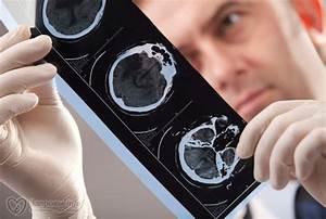 Михаил советов о лечении простатита