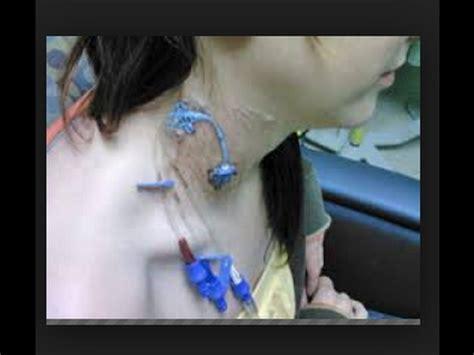 chambre implantable infirmier réfection pansement sous clavière jugulaire doovi