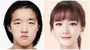Plastic Surgery in Korea: Competition and Why It is Good ...