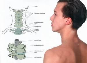 Диклофенак от остеохондроза шейного отдела позвоночника
