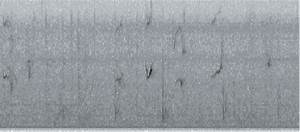 Spectrogram Of A 30 Second Sequence Of Calls From North Atlantic Right