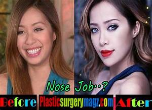 Michelle Phan Plastic Surgery: Nose Job and Chin Surgery ...