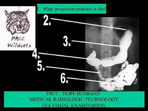 Radiographic Procedures I Chapter 17 Ugi Flashcards