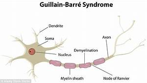 The OTHER kille... Guillain Barre Syndrome