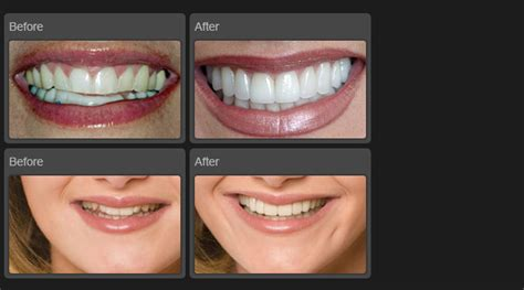 cosmetic dentistry ahmedabad indiadental clinic