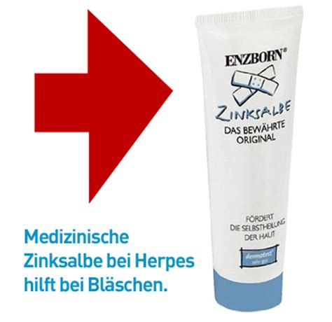 zinksalbe gegen herpes lippenherpes genitalherpes