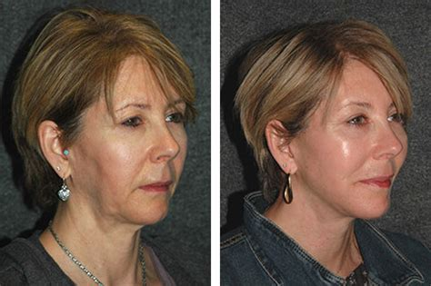 mini face lift  mini facelift pictures facial