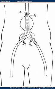 Intentional Internal Iliac Artery Occlusion
