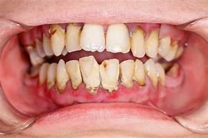 What You Should Know About Gum Disease | Nishan Halim ...