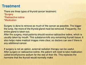 Thyroid cancer / papillary carcinoma