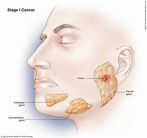 Salivary Gland Cancer  Stages And Grades
