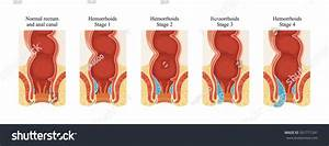 Hemorrhoids Stage Stock Illustration 501771241 - Shutterstock