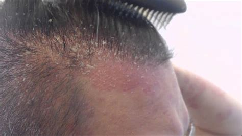 Best Ways To Get Rid Of Hair Psoriasis Follow The Remedies