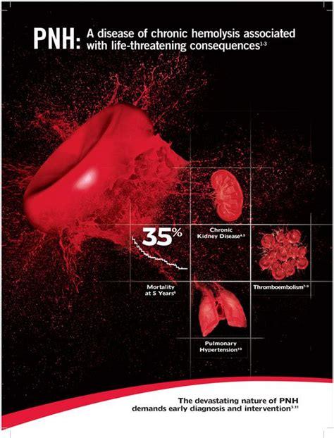 17 Best ideas about Paroxysmal Nocturnal Hemoglobinuria on ...