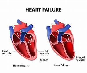 The 4 Heart Problem Symptoms You Shouldn't Ignore ...