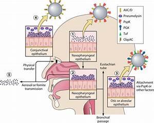 Nonencapsulated Streptococcus Pneumoniae  Emergence And