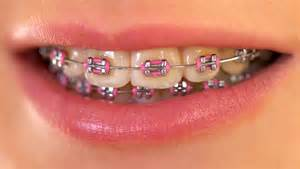 pink white gold wedding pink braces smilecentre