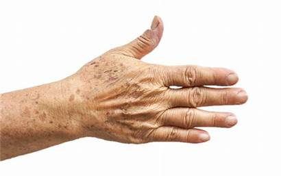 Hands Aging Age Hand Spots Wrinkles Treatment