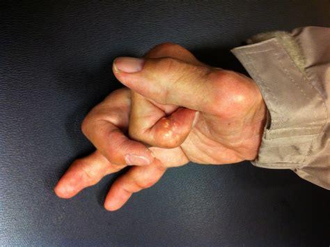 gout   recognize  complex form  arthritis