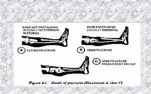 Splint A Suspected Fracture  Armystudyguide Com