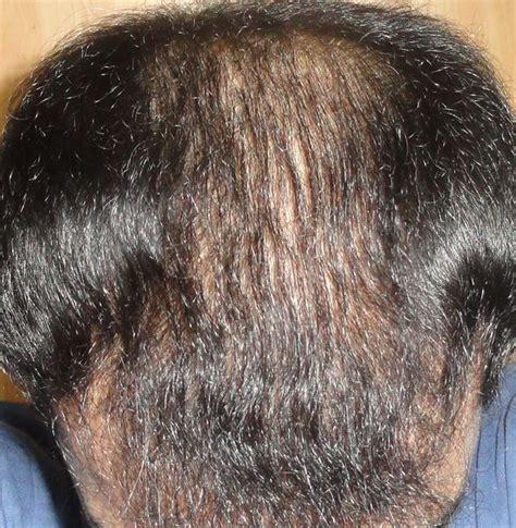 2 meses de finasteride 1 mes de minoxidil shedding
