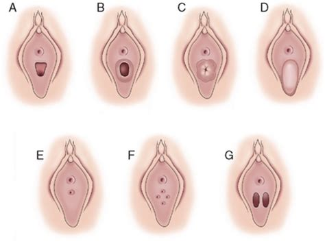 hymen pediatric images usseekcom