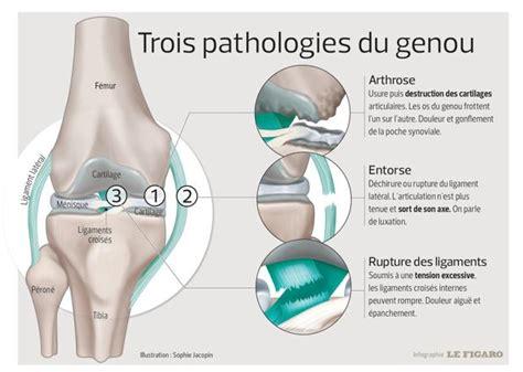 douleur a l interieur du genou douleur du genou qu est ce que c est fiches sant 233 et conseils m 233 dicaux