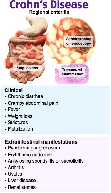 Rosh Review   Gastrointestinal nursing, Surgical nursing ...