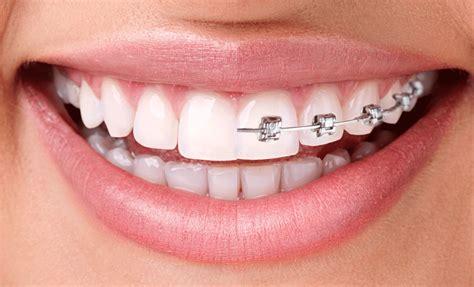 braces invisalign dental laser esthetics