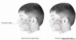 Эффективное средство при аденоидах у детей
