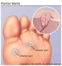 how to get rid of planters wart 1000 images about chiropody treatment on foot