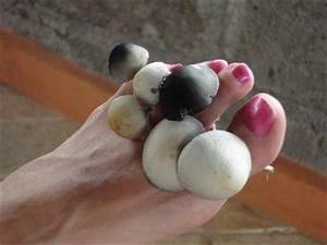 Цинково салициловая мазь от грибка стопы