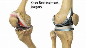 Step By Step Guide To Availing Knee Replacement Surgery