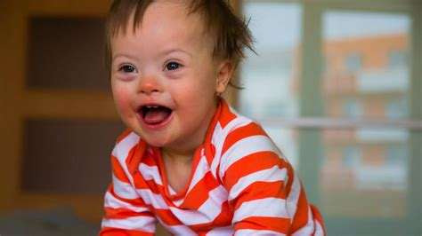 Down Syndrome Child and Language Development   Speech Blubs