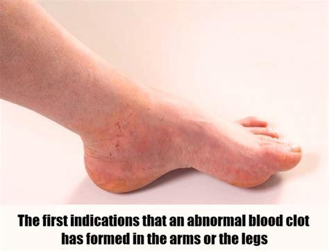 Symptoms Of Blood Clot In Leg Vein Recipekineticsandcom