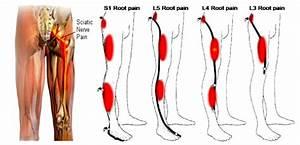 Top 10 Sciatic Pain Natural Treatments