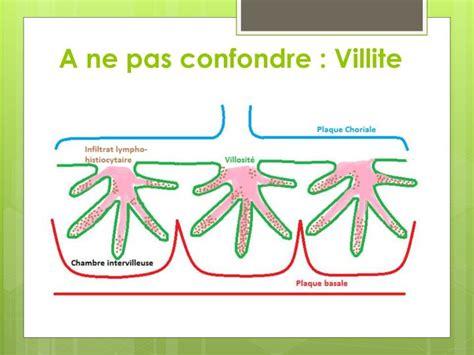 chambre intervilleuse ppt nouvelles pathologies du placenta l intervillite