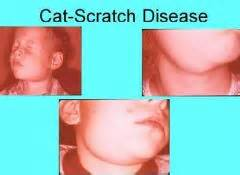what is cat scratch fever pathology infectious diseases i flashcards cram